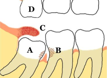4 Facts You Need to Know About Your Wisdom Teeth