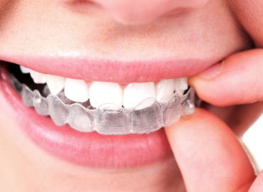 Take Care of Your Invisalign