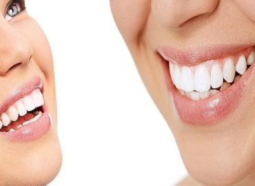 Types of Cosmetic Dentistry Treatments