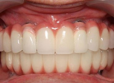 5 reasons why implant supported dentures are better than dentures