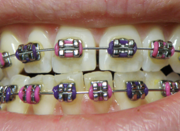 5 Braces Mistakes People Make and How to Avoid Them