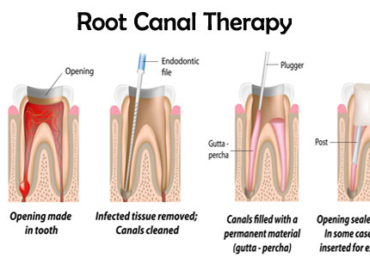 Root Canal Myths Debunked