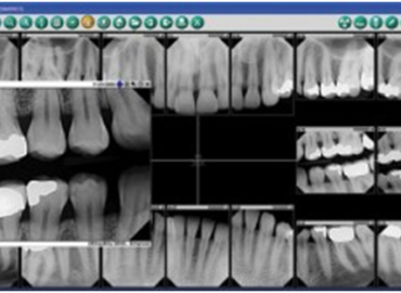 Dental X-rays and their Indisputable Importance